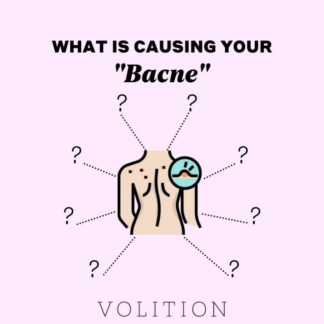 What's Causing Your Bacne?